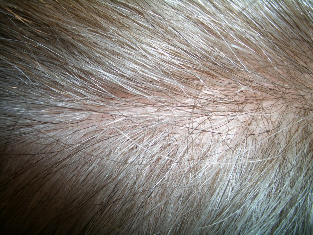 Parting area of fine density hair addition
